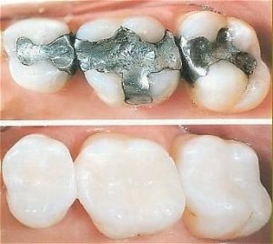 Tooth Coloured (Composite) Fillings